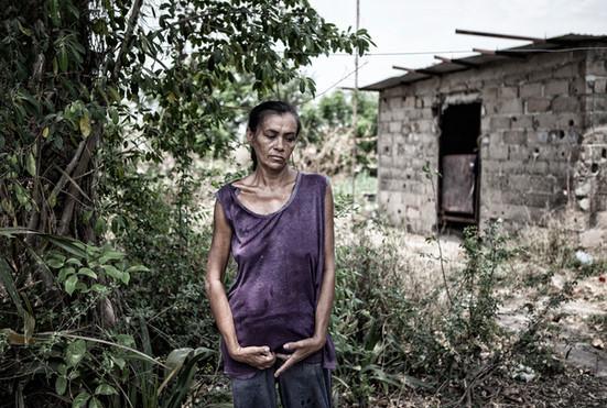 Maribel Quintero (50), tiene la enfermedad de Huntington. Tiene dos hijos y vive con su esposo que es pescador. Barranquitas 2015