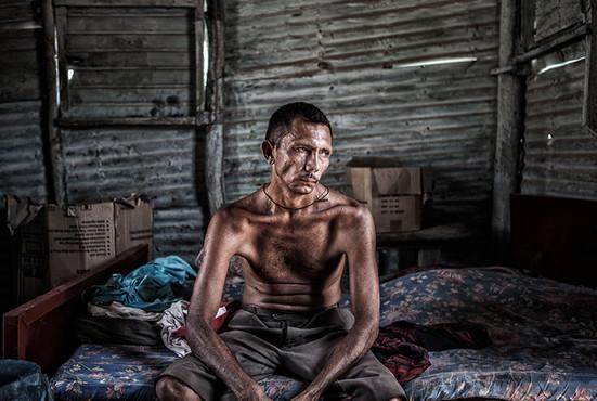 Limardo Soto (37) Tiene la enfermedad de Huntington, tiene cinco hijos. Su esposa e hijos lo abandonaron y solo Maikel se quedó con el para mantenerlo. Barranquitas, Zulia. Venezuela. 2015