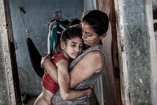 Maybelis Ledezma (13).  y Marymar (20) se abrazan en la puerta del cuarto. Marymar tiene la enfermedad también. Barranquitas, Zulia. Venezuela. 2015