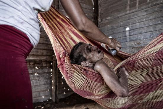 Zuly Soto (34) ella recibe a veces la atención de algunos vecinos que la hidratan y le dan alimentos. Barranquitas, Zulia. Venezuela. 2015
