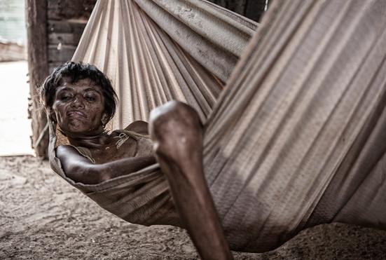Zuly Soto (34). ella tiene la enfermedad de Huntington. Vive completamente sola. Barranquitas, Zulia. Venezuela. 2015