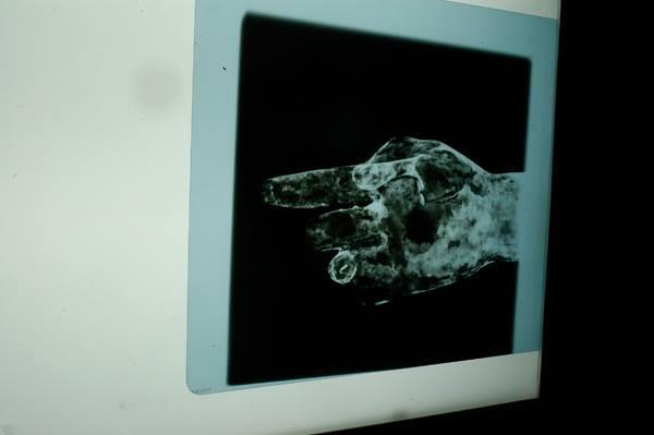 Radiografías del Cristo de Las Mercedes