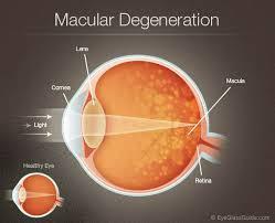 Degeneração Macular Relacionada a Idade