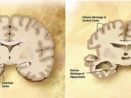 Prevenindo Déficit Cognitivo Leve e Alzheimer