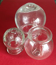Picture of 3 cups for cupping