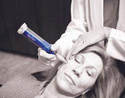 SkinPen Precision Procedure