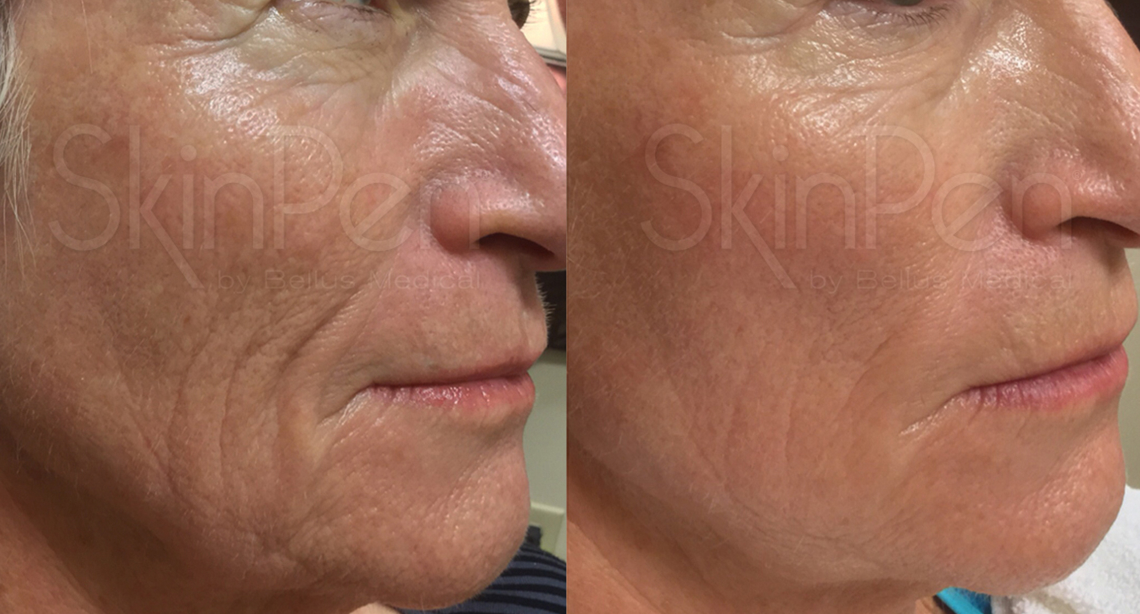 Before & After - 2 treatments