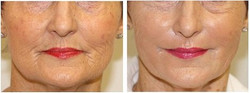Cellenis PRP Before and After - Face