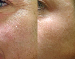 SkinPen Before and After - Eye Area