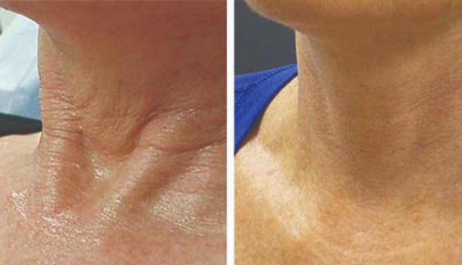 Cellenis PRP Before and After - Neck