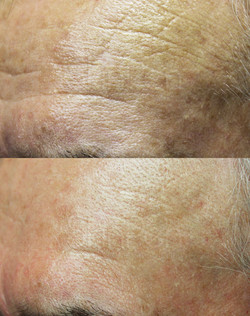 Before & After - 5 Treatments