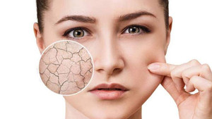 Dehydrated Skin - What It Is