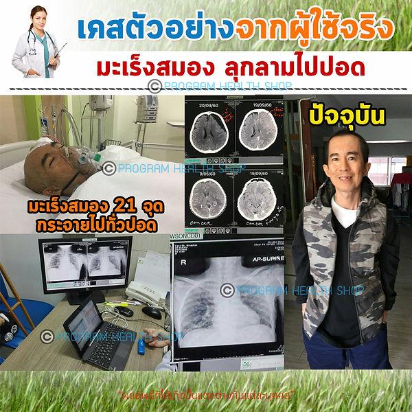 มะเร็งสมองไปปอด+ลิขสิทธิ์.jpg