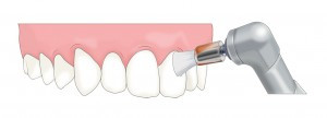 歯周病はどうしたら治るの?