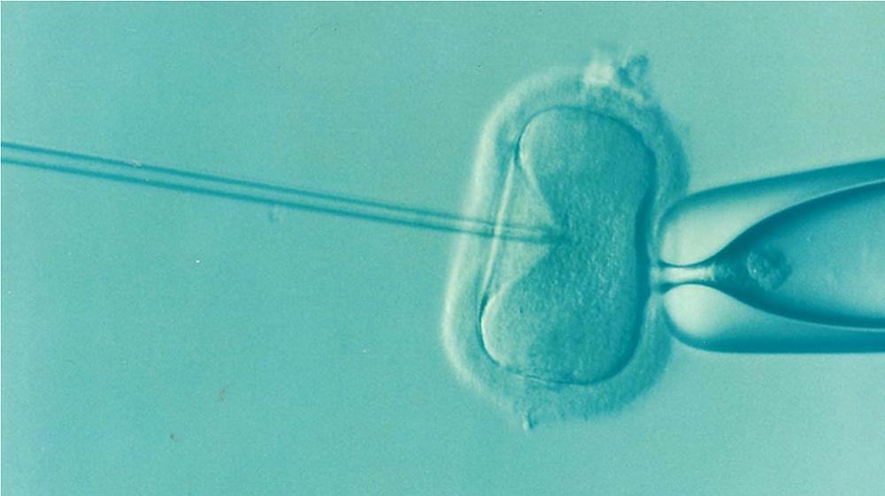 IVF and Egg Freezing