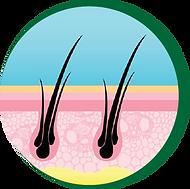 H2G Prevent Hair Loss