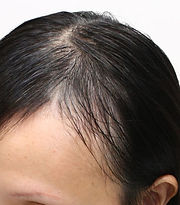 post-natal-hair-loss-cropped.jpg