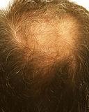 hair loss 1.jpg