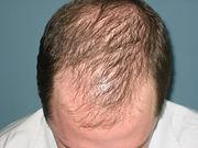 Male Pattern Hair Loss.jpg