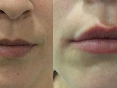Como fazem as celebridades para ter lábios perfeitos?