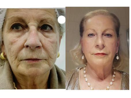 Tratamento de rejuvenescimento em mulher de 70 anos