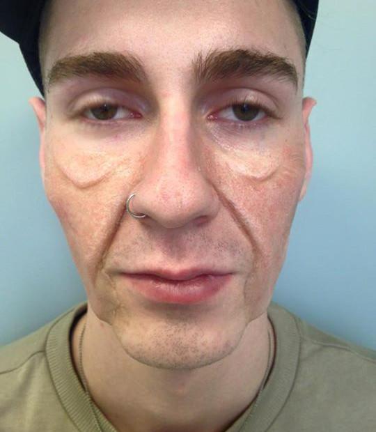 Aged Gelatin Prosthetic