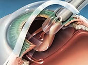 Cirugía Catarata en León