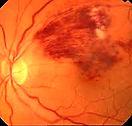 oftalmólogo en León