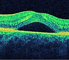 Estudios Auxiliares de oftalmología