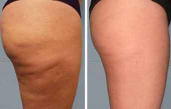 cellulite reduction2_edited.jpg