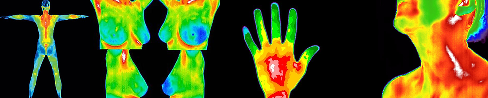Thermography of a hand