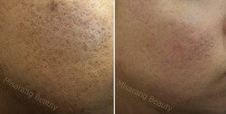 Acne Scar 4