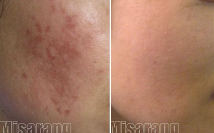 Acne Scar 6