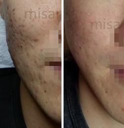 Acne Scar 2