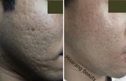Acne Scar 1