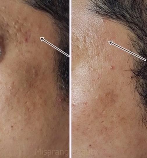 Acne Scar 8