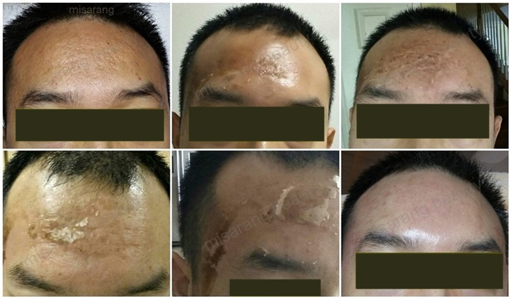 Acne Scar 7