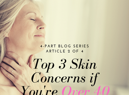 4-Part Series~Your Skin as You Age:  Top 3 Skin Concerns if You're Over 40