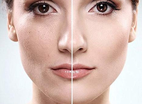 What's the Most Effective Way to Remove Peach Fuzz: Dermaplaning