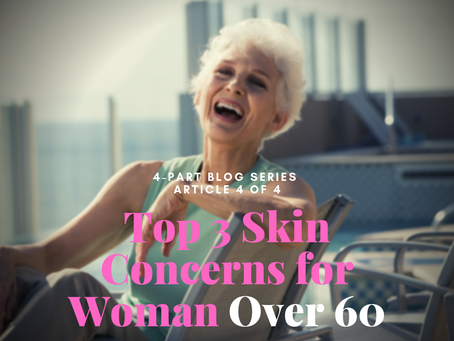 4-Part Series~Your Skin as You Age: Top 3 Skin Concerns if You're Over 60