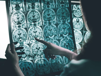 Exploring the Immune System for Clues to Alzheimer's
