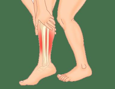 【中学生・高校生アスリート必見その1】脛の痛みに悩まないために行ってほしいセルフケア