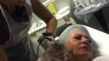 Dermapen Mesotherapy