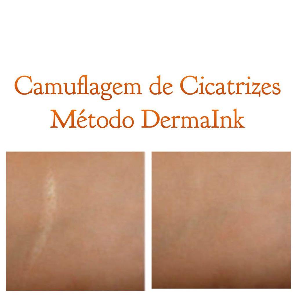 camuflagem cicatriz beautyskin