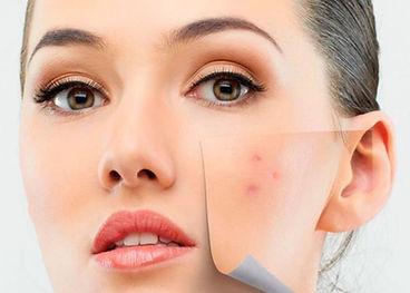 cicatriz de acne beautyskin maringa curi