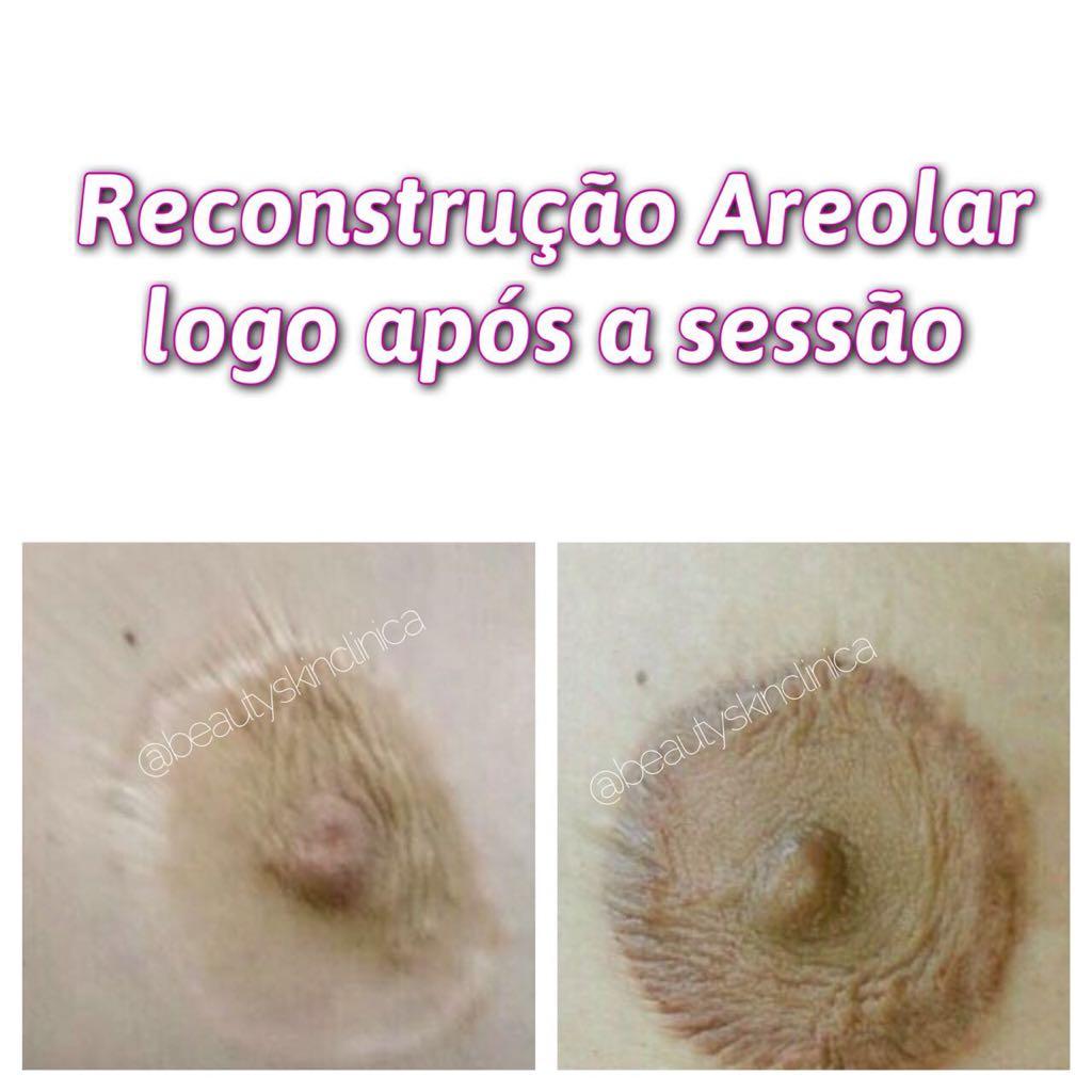 reconstrução_areolas_beautyskin