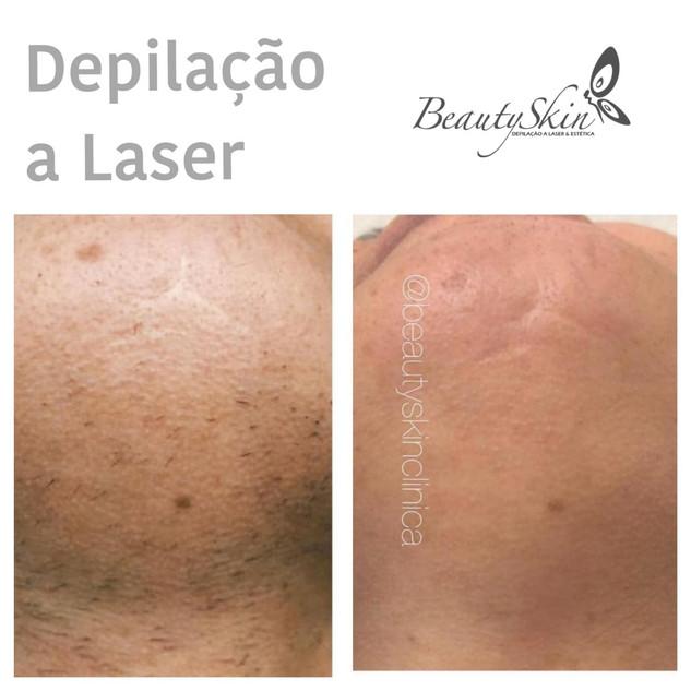 Depilação a Laser Curitiba e Maringá