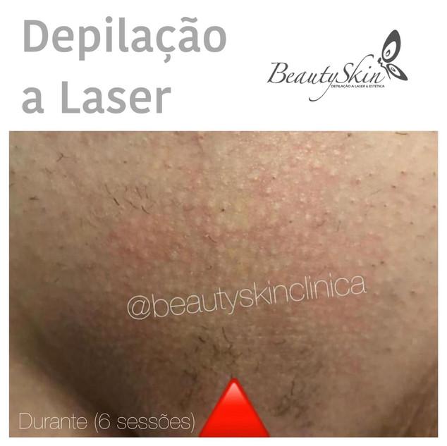 Depilação a Laser Curitiba e Maringa
