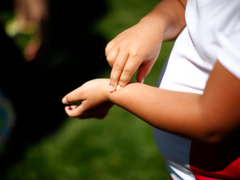 Childhood Obesity & the Need for Environmental Change