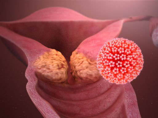 The Start of an Era: Eliminating Cervical Cancer